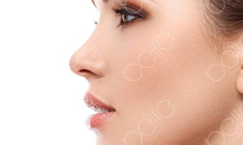 假体隆鼻等其他鼻部手术